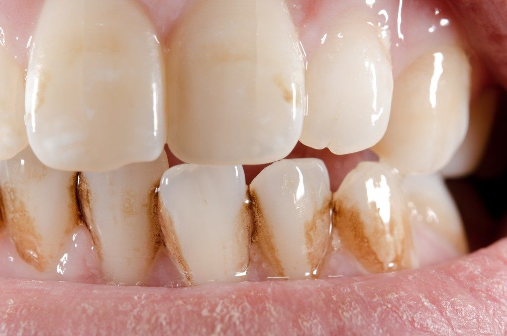 Stained teeth close up