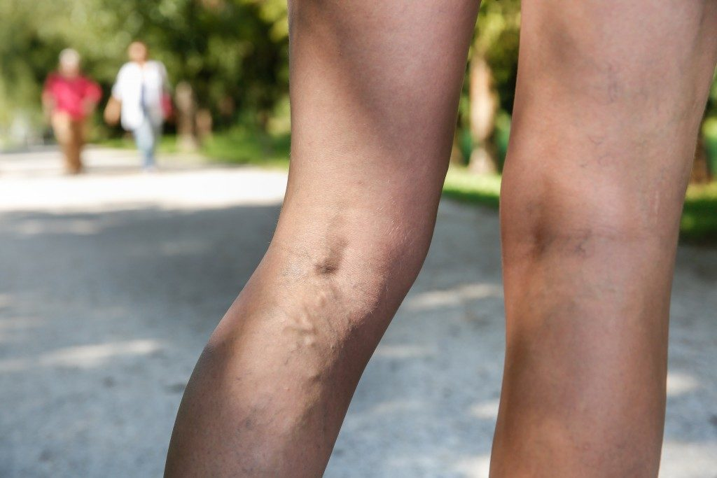Painful varicose and spider veins on woman's legs