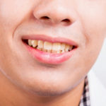 4 Signs You Shouldn't Ignore When It Comes to Your Oral Health