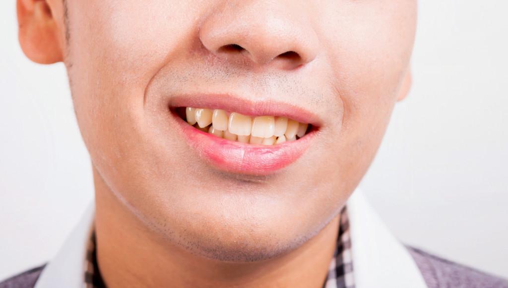 oral helath